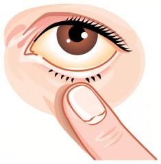 目が腫れる